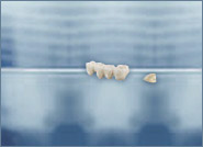 At the dental practice Leick & Leick in Frankfurt Höchst, patients receive dental prostheses from master dental technicians in Germany with a 6-year guarantee.